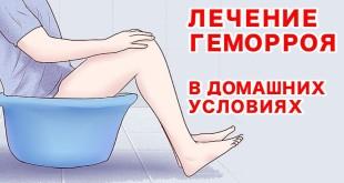 Лечение геморроя дома