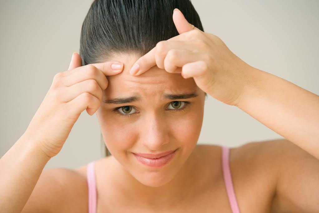 Угревая сыпь – это проблема жирной кожи.