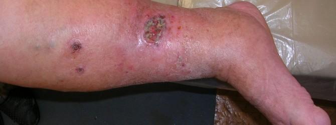 Трофические язвы и плохо заживающие раны