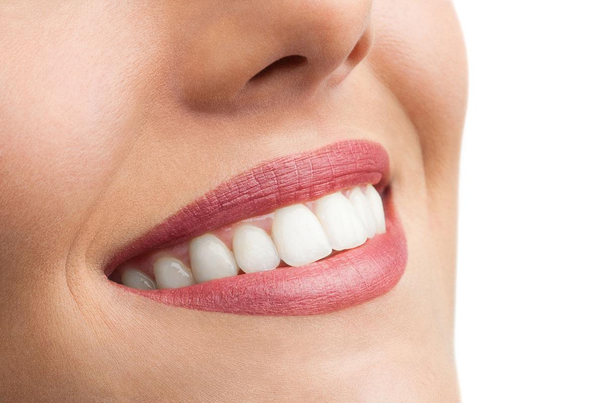 Отбеливание зубов народными способами