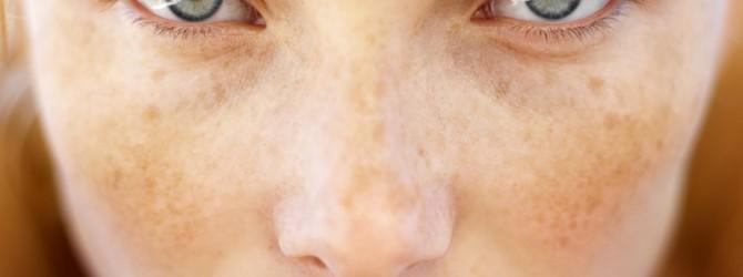 Эфирные масла от пигментных пятен на лице