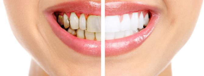 Удаление и лечение зубного камня природными средствами