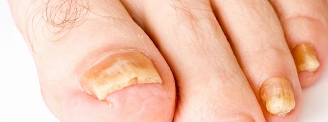 Лечение народными средствами грибка ногтей