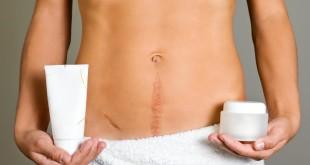 Рубцы и шрамы — народные средства от шрамов
