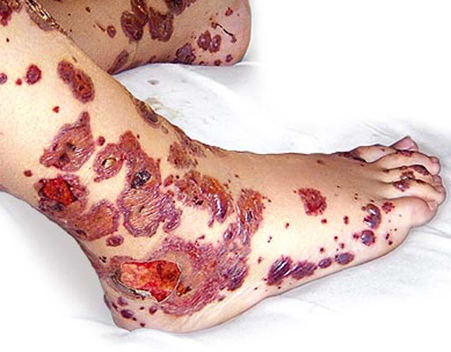 Геморрагический васкулит — народные средства от геморрагического васкулита