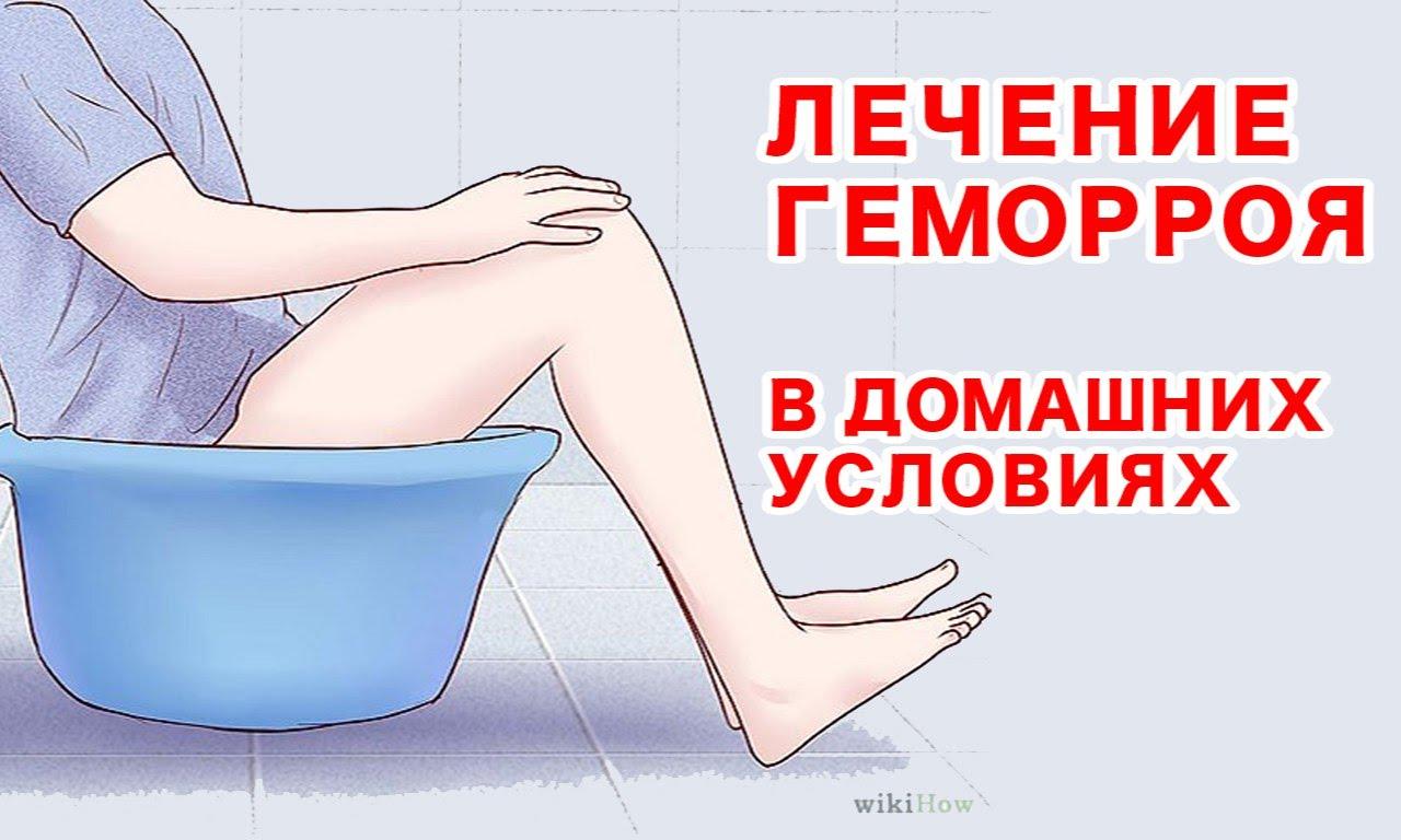 Геморрой лечение народными средствами