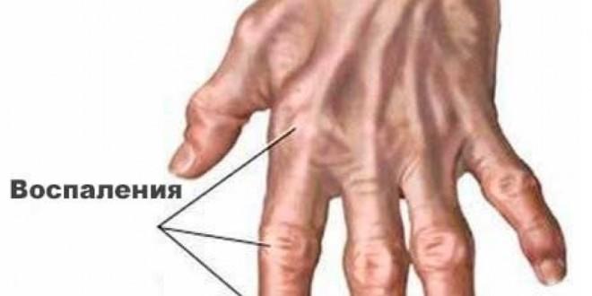 народные средства от артрита суставов