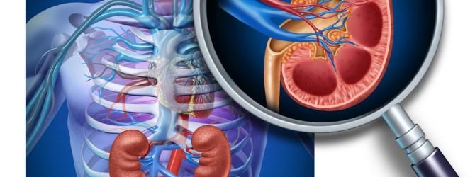 Мочекаменная болезнь лечение народными средствами