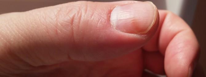 Лучший в мире белый пластырь для лечения фурункулов, нарывов, болячек
