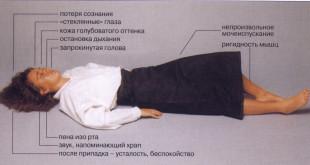 Эпилепсия (болезнь)