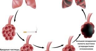 Эмфизема легких (лечение)
