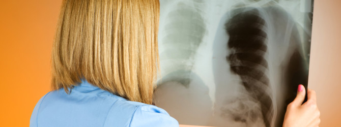 Туберкулез и его лечение. Как лечат чахотку в Китае