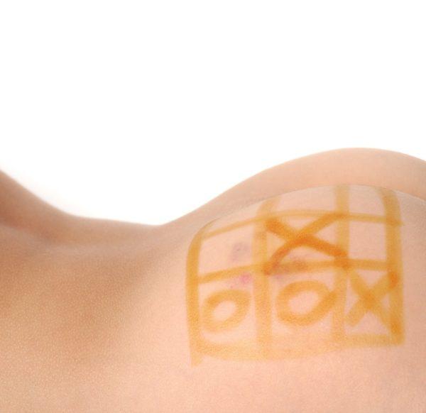 Изображение - Йодная сетка на суставы польза и вред yodovaya-setka-na-yagodice-600x582