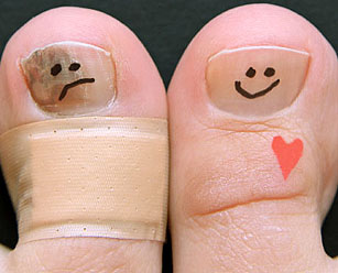 Больной и здоровый ногти