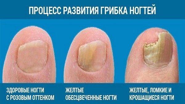Стадии поражения ногтя грибком