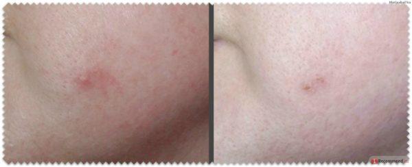 Прыщ на щеке девушки до и после применения настойки календулы