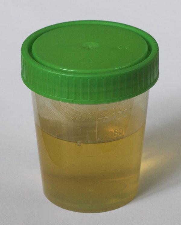 Урина в баночке