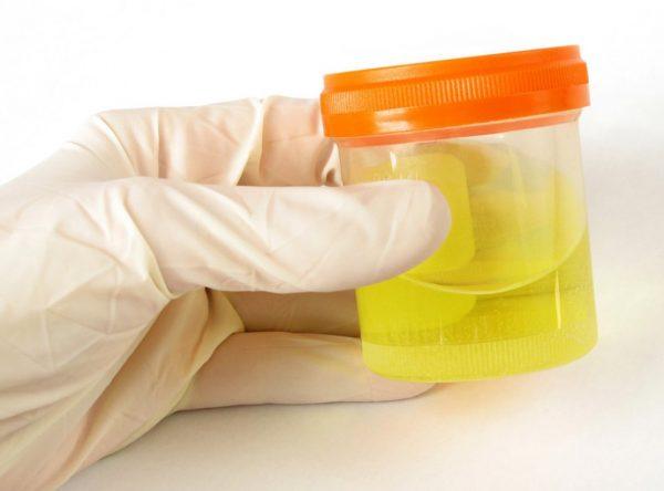 Рука в медицинской перчатке держит баночку с мочой