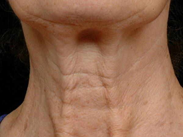 Крупный план морщин на шее зрелой женщины
