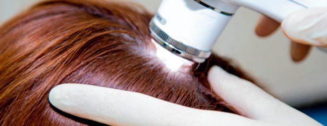 Лечение волос аппаратно