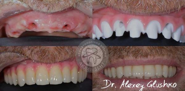 Имплантация зубов в Люми-Дент, фото до и после